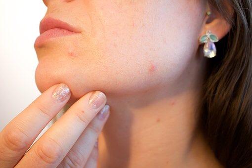 花粉でお肌が荒れるのは「花粉皮膚炎」だった!花粉で肌がかゆい・赤みがでる… 症状をチェックして早めの対策を!